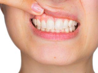 Perfect Dent - Clinod