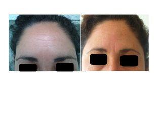 Rejuveneciemiento facial