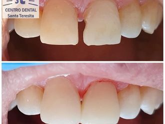 Implantes dentales - 742366