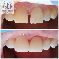 Implantes dentales - Centro Dental Santa Teresita Quilpue