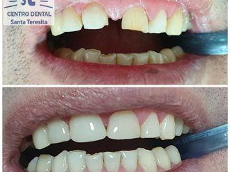 Implantes dentales-742370