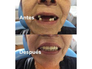Prótesis dentales - Centro Dental Santa Teresita Quilpue