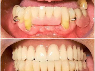 Prótesis dentales-792218