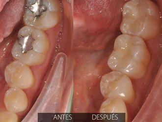 Endodoncia - 575348