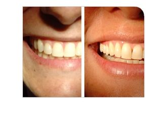 Blanquear dientes-316874