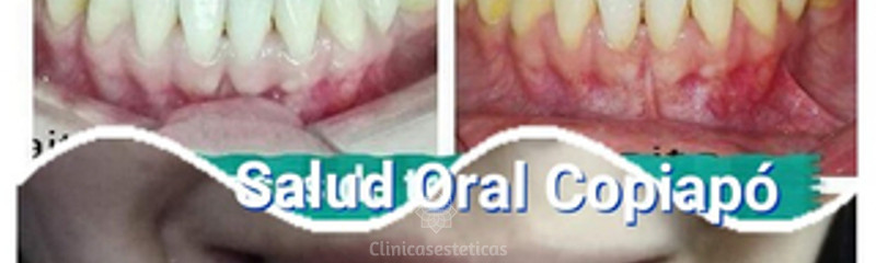 Clínica Dental SALUD ORAL CHILE COPIAPO