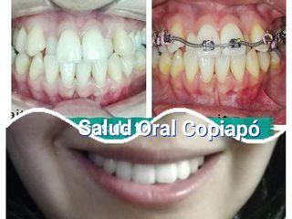 Ortodoncia sin extracion de piezas dentales