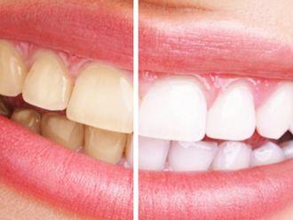 Blanquear dientes-622992