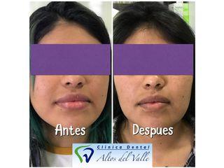 Resultado Bichectomía Clinica Dental Altos del Valle