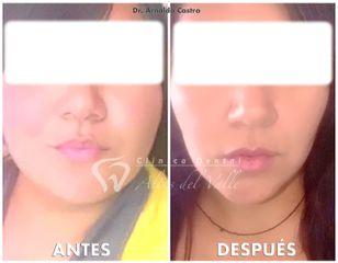 Bichectomia  - Clínica Dental Altos del Valle
