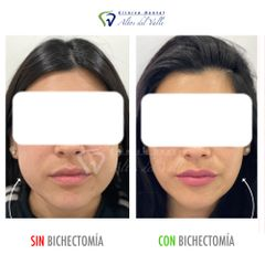 Bichectomía - Clínica Dental Altos del Valle