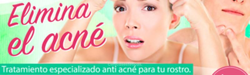 Elimina el acné