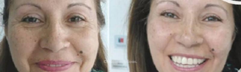 Antes y despues de rejuvenecimiento 3D