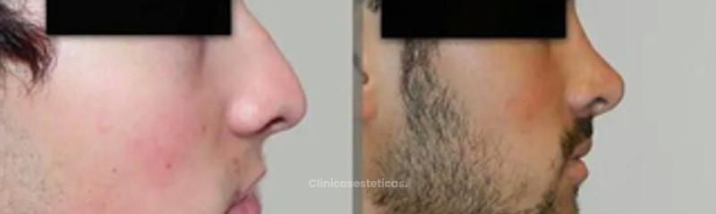 Rinoseptoplastia