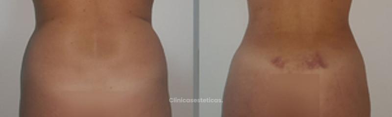 LIPOESCULTURA + LIPOTRANSFERENCIA A GLÚTEO
