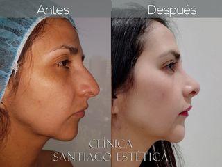 Clínica Santiago Estética
