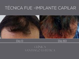 Implante capilar