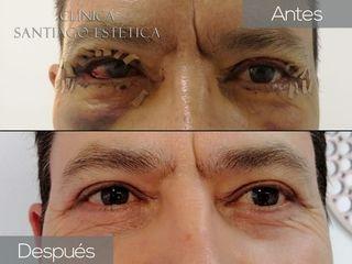 Clínica Santiago Estética - Blefaroplastia