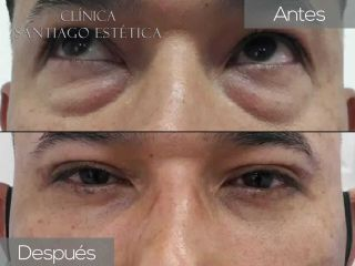 Blefaroplastia - Clínica Santiago Estética
