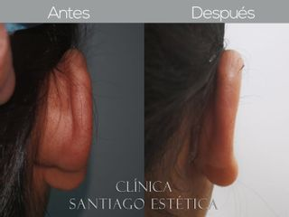 Otoplastia - Clínica Santiago Estética