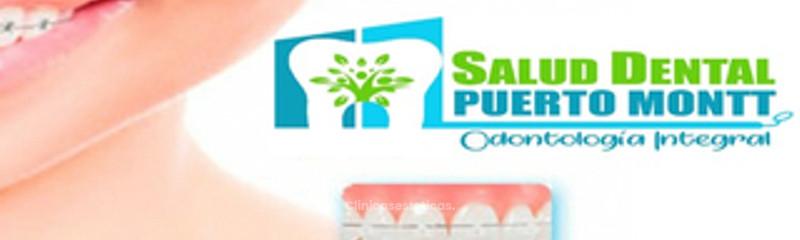 Salud Dental Puerto Montt