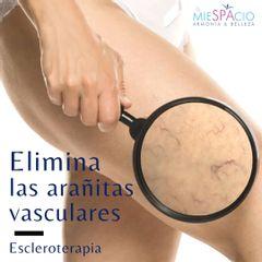 Arañitas vasculares