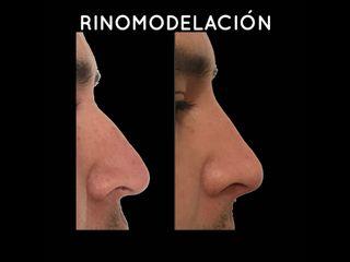 rinomodelación