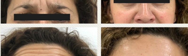 Aplicacion Botox