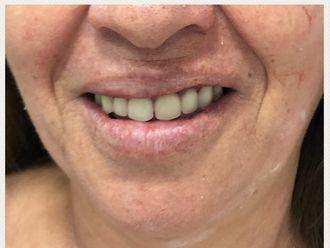 Prótesis dentales - 631899