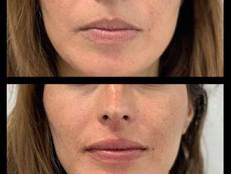 Aumento de labios - 632303