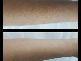 Depilacion laser diodo brazo