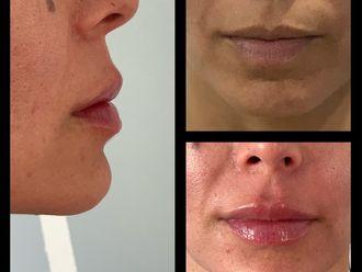 Aumento de labios-638353