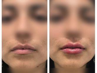 Aumento de labios - 638355