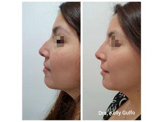 Rinomodelacion  Dra Kelly Gulfo