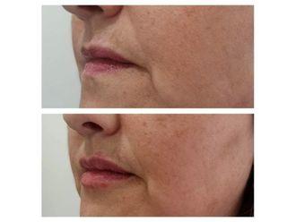 Aumento de labios-643602
