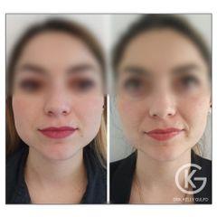 Botox masetero
