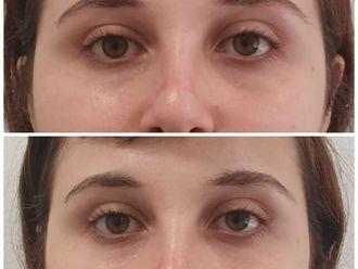Tratamiento de ojeras-649940
