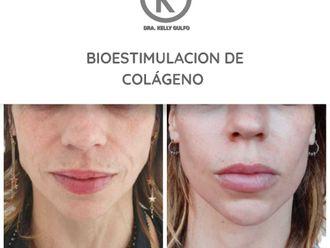 Rejuvenecimiento facial - 661252