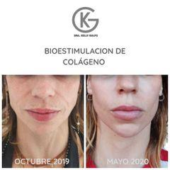 Bioestimuladores de colageno