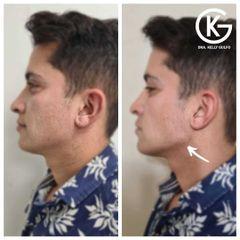 Contorno mandibular