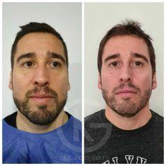 Dra. Kelly Gulfo - Armonizacion facial