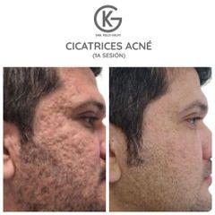 Energia plasmatica para cicatrices de acne - Dra. Kelly Gulfo