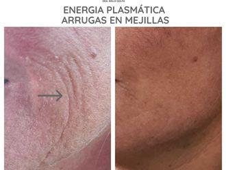 Rejuvenecimiento facial-663525