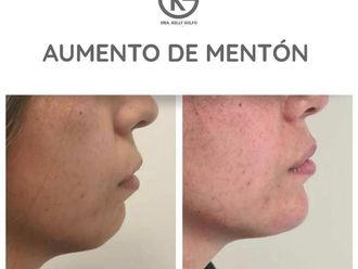 Rejuvenecimiento facial-701706