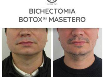 Bótox-701707