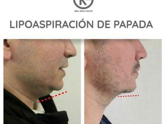 Rejuvenecimiento facial-701708