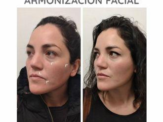 Rejuvenecimiento facial-740613