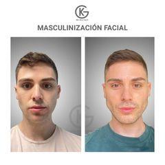 Masculinización facial - Dra. Kelly Gulfo