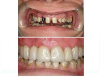Implantes dentales - 496168