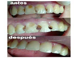 Reconstrucción dental